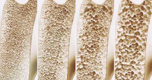 Prevenga la osteoporosis con nutrición